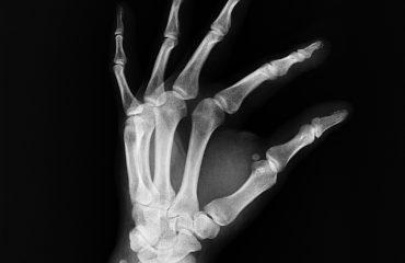Røntgen hånd